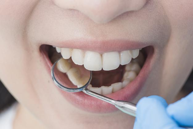 En kvinde får tjekket af sine tænder